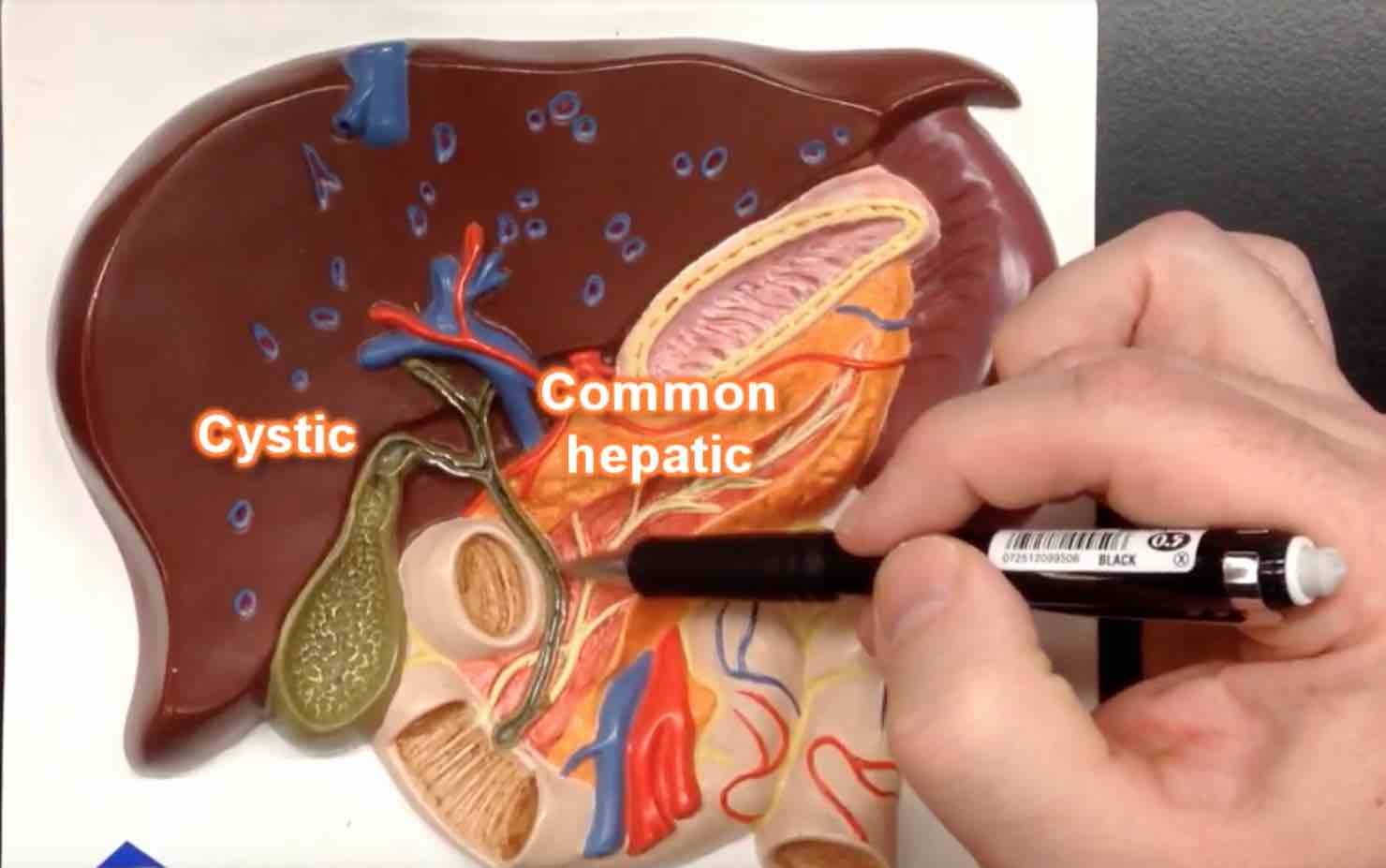 Cholnagiocarcinoma Australia - ile Ducts made easy -An easy to follow video on the relationship between the bile ducts, liver, stomach, pancreas, duodenum and more such as Ampular, Hepatic Artery . . .